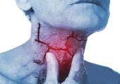 Tìm hiểu căn bệnh ung thư hạ họng